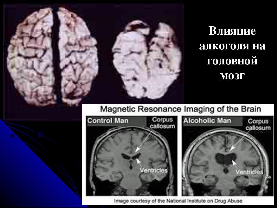 Влияние алкоголя на головной мозг