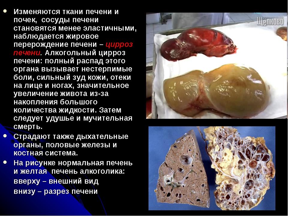 Изменяются ткани печени и почек, сосуды печени становятся менее эластичными,...