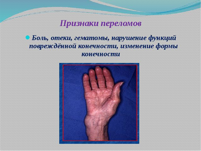 Алгоритм оказания первой медицинской помощи при травмах При закрытом переломе...