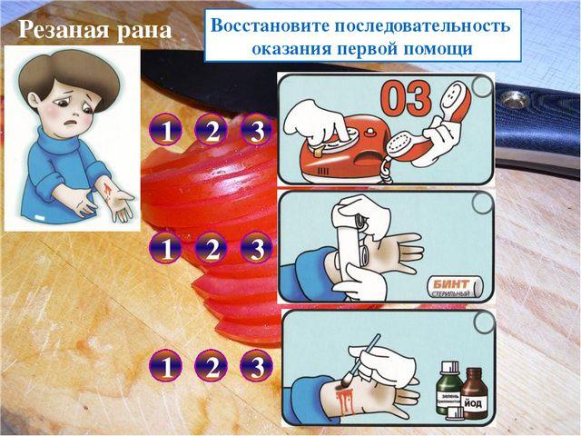 Перелом кисти Выберите первую помощь при переломе кисти