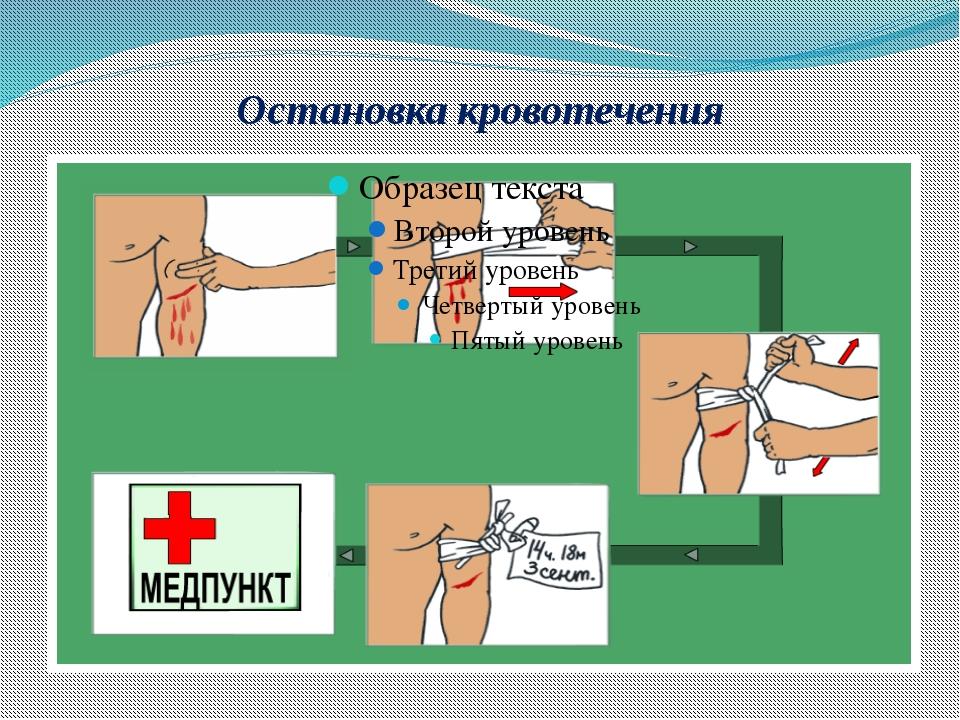 Практическое задание: Наложить кровоостанавливающий жгут на плечо Наложить кр...