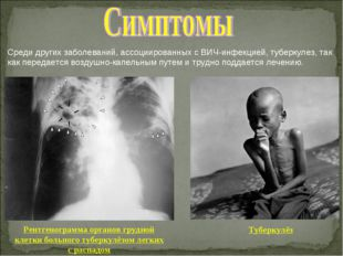 Среди других заболеваний, ассоциированных с ВИЧ-инфекцией, туберкулез, так ка