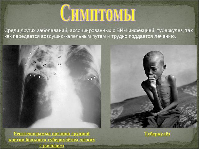 Среди других заболеваний, ассоциированных с ВИЧ-инфекцией, туберкулез, так ка...