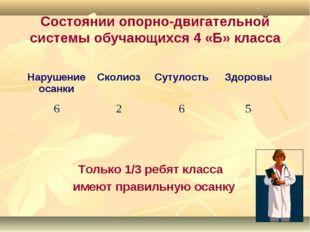 Состоянии опорно-двигательной системы обучающихся 4 «Б» класса Только 1/3 реб