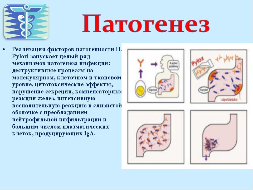 Реализация факторов патогенности H. Pylori запускает целый ряд механизмов пат...