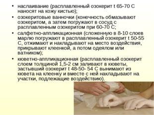наслаивание (расплавленный озокерит t 65-70 С наносят на кожу кистью); озокер