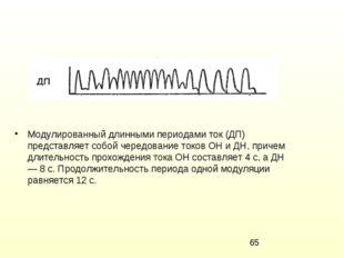 Модулированный длинными периодами ток (ДП) представляет собой чередование ток