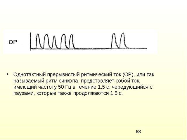 Однотактный прерывистый ритмический ток (ОР), или так называемый ритм синкопа...