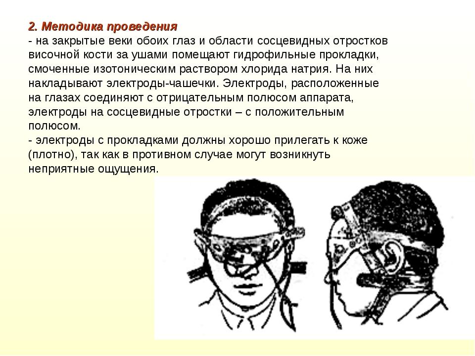 2. Методика проведения - на закрытые веки обоих глаз и области сосцевидных от...