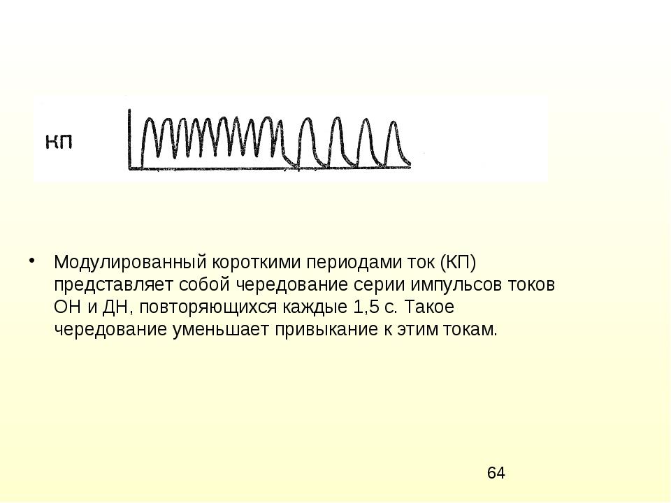Модулированный короткими периодами ток (КП) представляет собой чередование се...