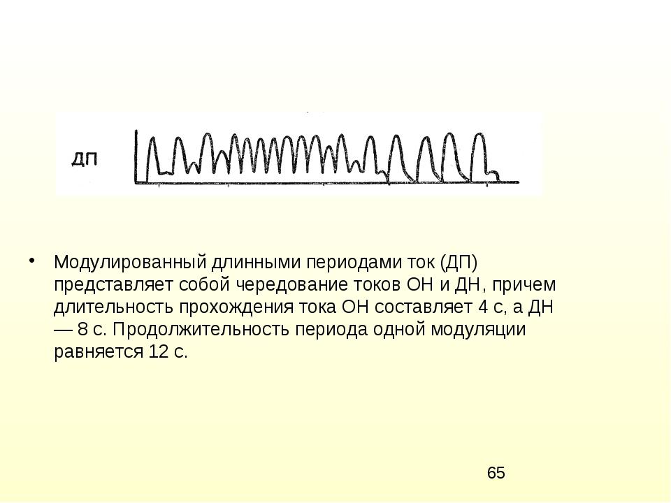 Модулированный длинными периодами ток (ДП) представляет собой чередование ток...