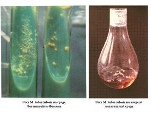 Рост M. tuberculosis на жидкой питательной среде Рост M. tuberculosis на сред