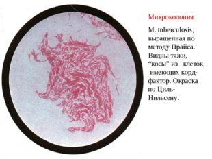 """Микроколония M. tuberculosis, выращенная по методу Прайса. Видны тяжи, """"косы"""""""