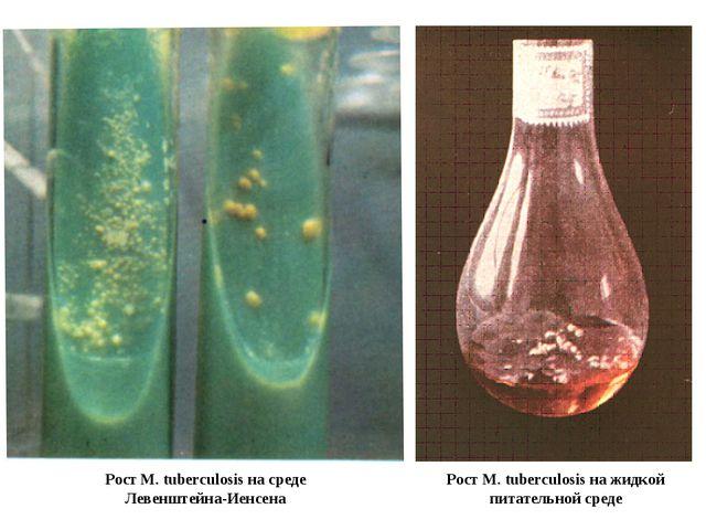 Рост M. tuberculosis на жидкой питательной среде Рост M. tuberculosis на сред...