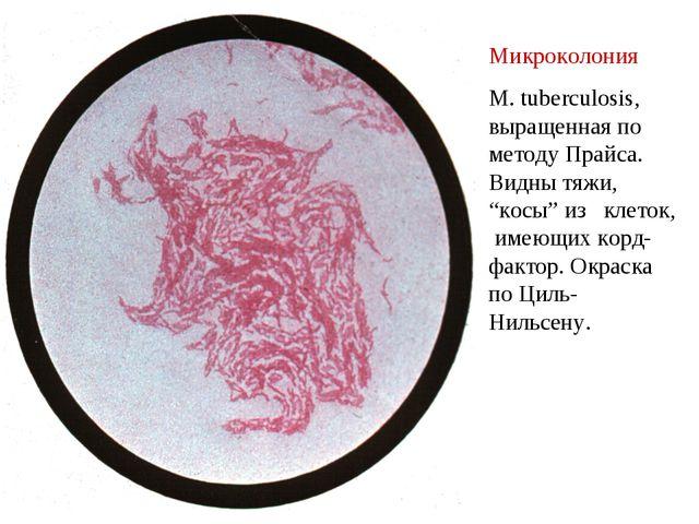"""Микроколония M. tuberculosis, выращенная по методу Прайса. Видны тяжи, """"косы""""..."""