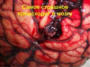 Самое страшное происходит в мозгу