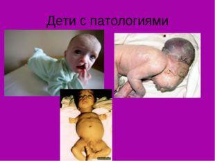 Дети с патологиями