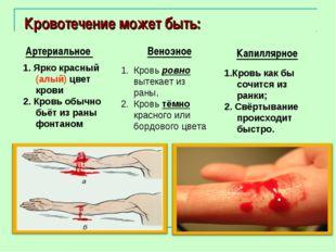 Кровотечение может быть: Артериальное 1. Ярко красный (алый) цвет крови 2. К