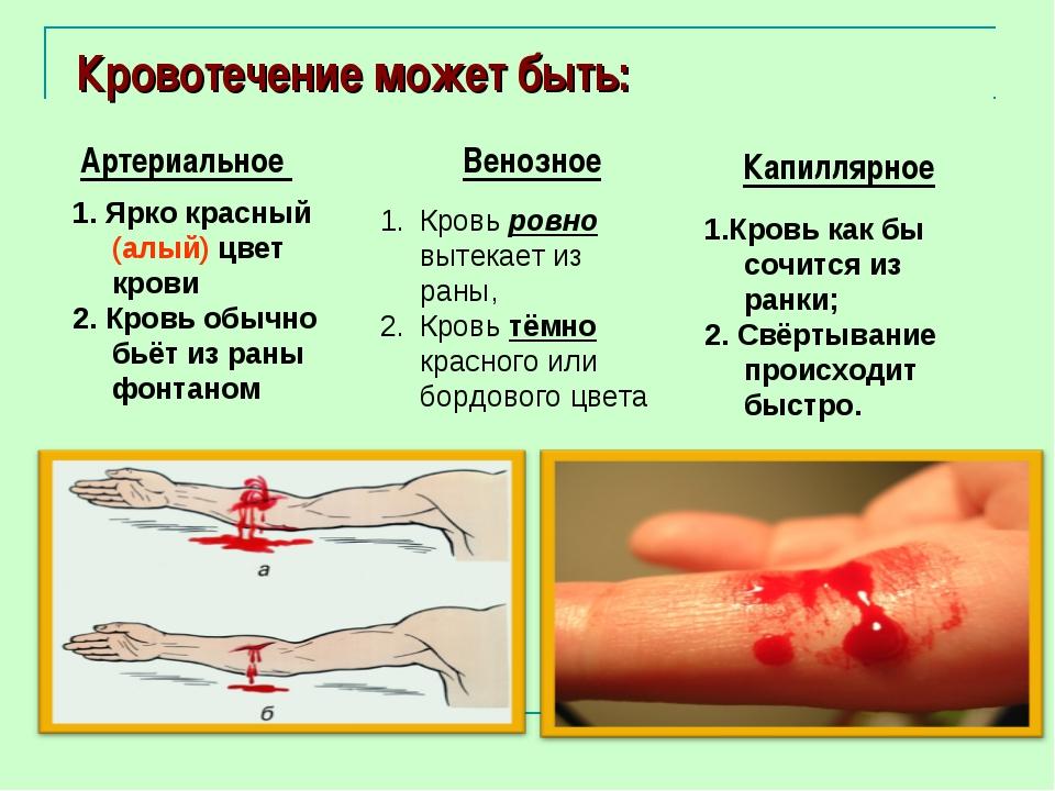 Кровотечение может быть: Артериальное 1. Ярко красный (алый) цвет крови 2. К...