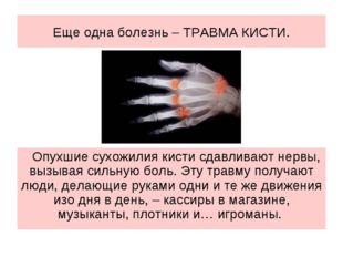 Еще одна болезнь – ТРАВМА КИСТИ. Опухшие сухожилия кисти сдавливают нервы, вы