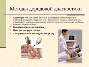 Методы дородовой диагностики Амниоцентез. Этот метод позволяет анализировать