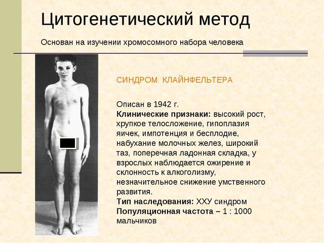 СИНДРОМ КЛАЙНФЕЛЬТЕРА Описан в 1942 г. Клинические признаки: высокий рост, хр...