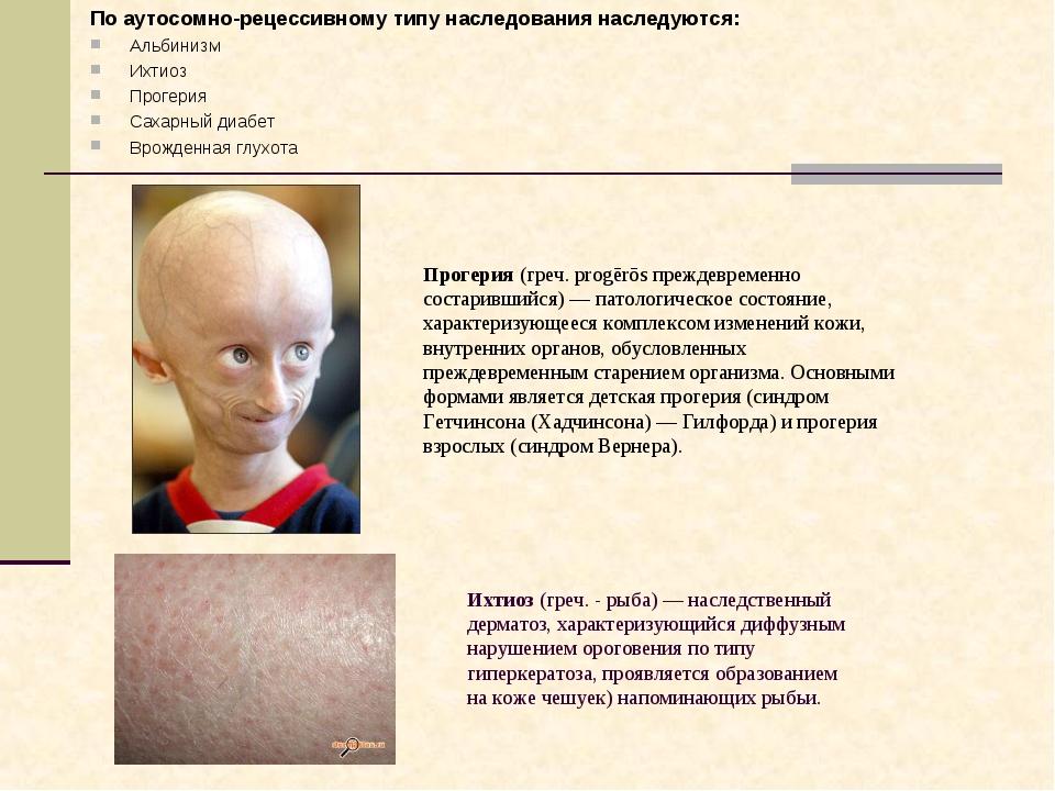 По аутосомно-рецессивному типу наследования наследуются: Альбинизм Ихтиоз Про...