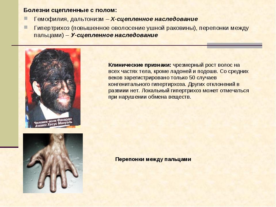 Болезни сцепленные с полом: Гемофилия, дальтонизм – Х-сцепленное наследование...