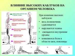 ВЛИЯНИЕ ВЫСОКИХ КАБЛУКОВ НА ОРГАНИЗМ ЧЕЛОВЕКА При ношении высоких каблуков: в