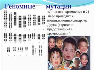 Геномные мутации «Лишняя» хромосома в 21 паре приводит к возникновению синдр