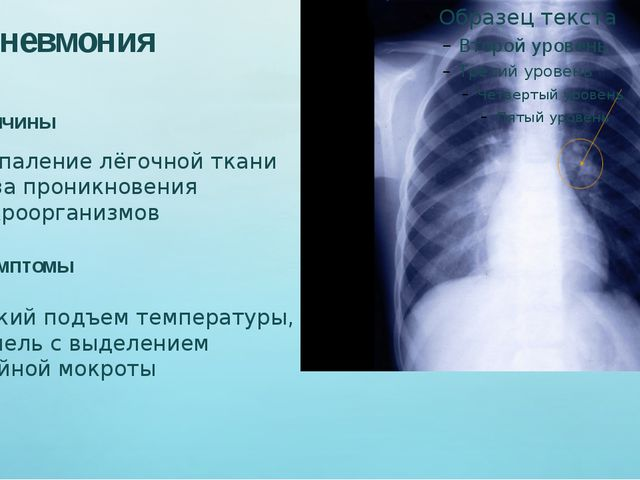 Пневмония Причины Воспаление лёгочной ткани из-за проникновения микроорганиз...