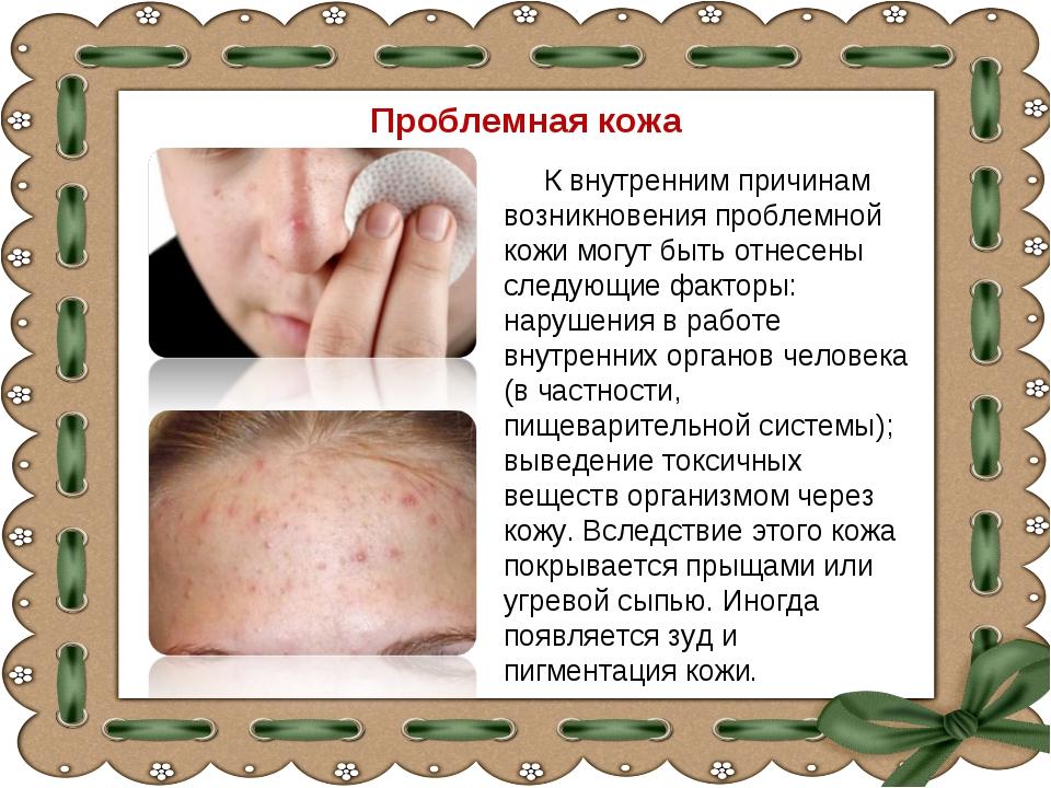 Проблемная кожа К внутренним причинам возникновения проблемной кожи могут быт...