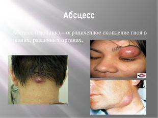 Абсцесс Абсцесс(гнойник) – ограниченное скопление гноя в тканях, различных о