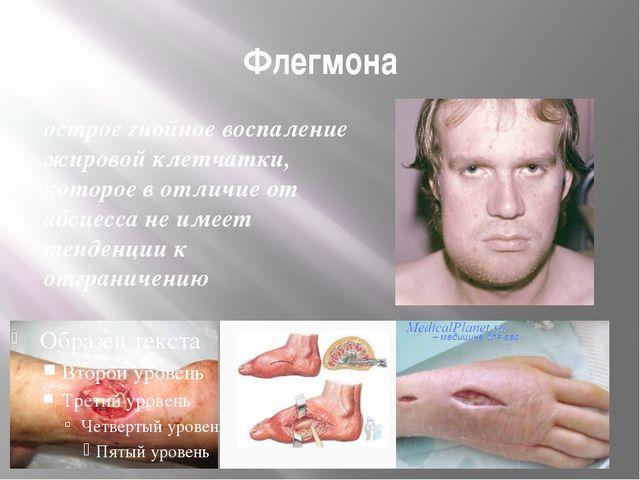 Флегмона острое гнойное воспаление жировой клетчатки, которое в отличие от аб...
