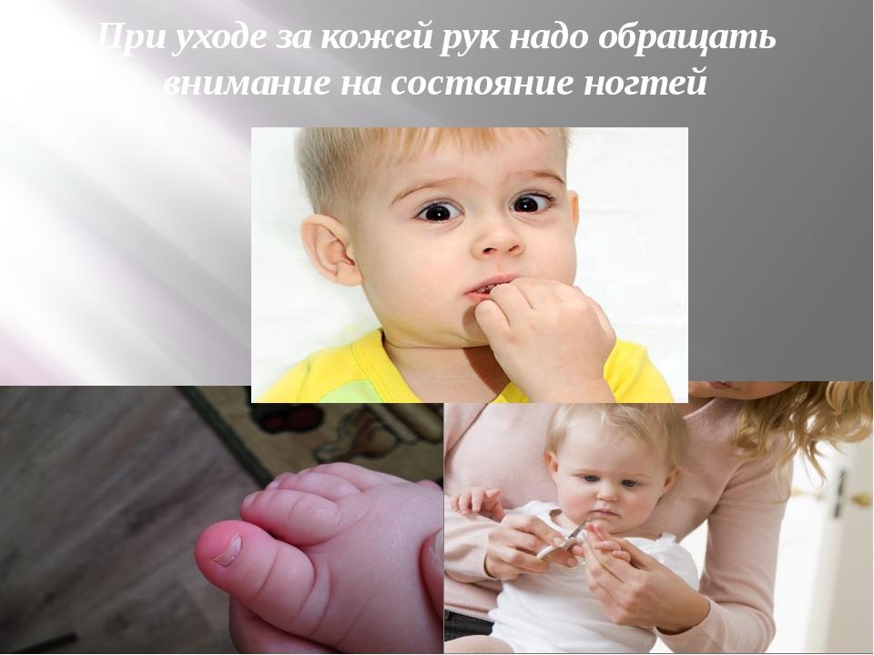 При уходе за кожей рук надо обращать внимание на состояние ногтей