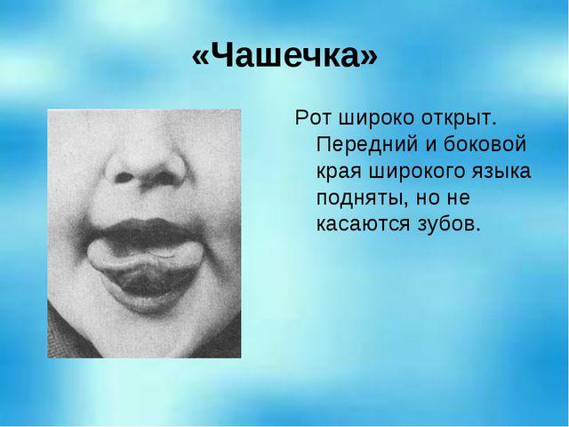 «Чашечка» Рот широко открыт. Передний и боковой края широкого языка подняты,...