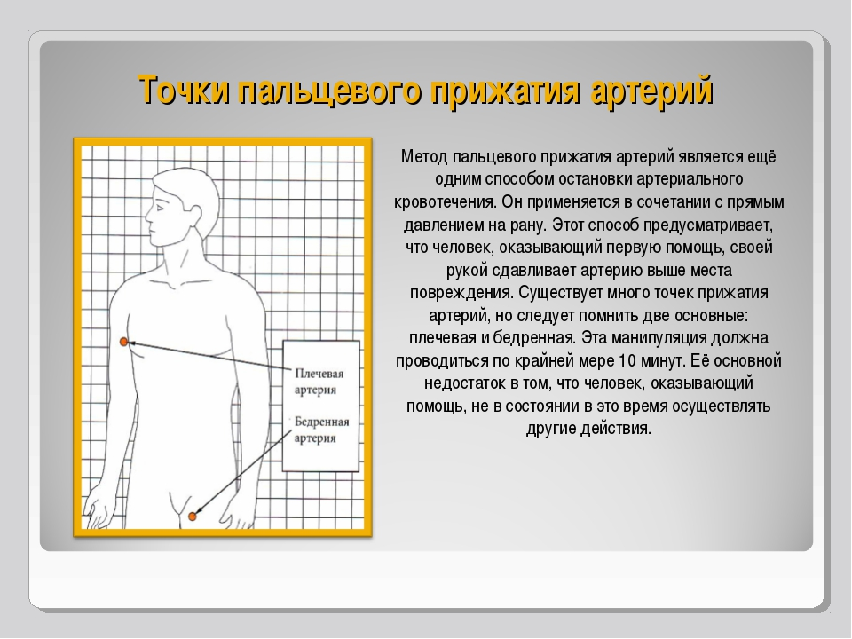 Точки пальцевого прижатия артерий Метод пальцевого прижатия артерий является...