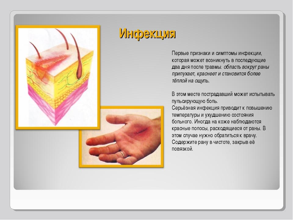 Инфекция Первые признаки и симптомы инфекции, которая может возникнуть в посл...