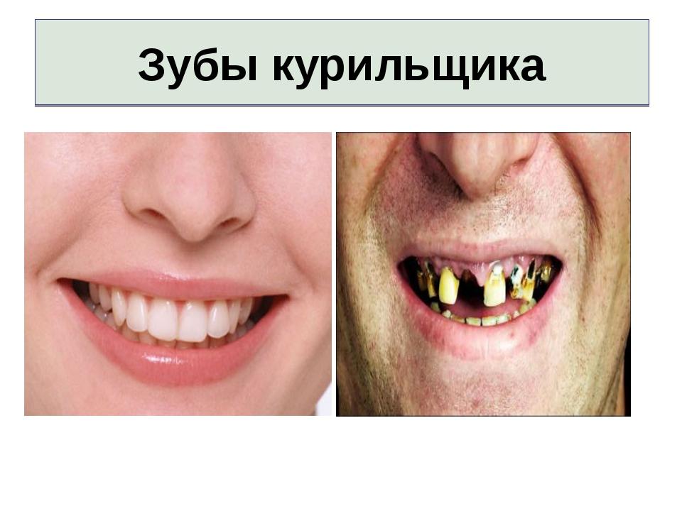 картинки зубы курящих воскликнет иной читатель-скептик