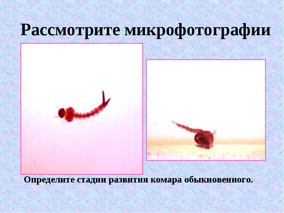 Рассмотрите микрофотографии Определите стадии развития комара обыкновенного.