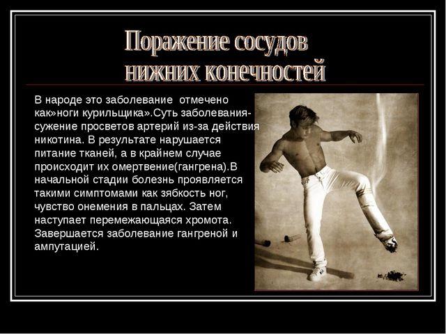 В народе это заболевание отмечено как»ноги курильщика».Суть заболевания- суже...
