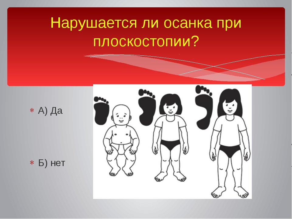 Нарушается ли осанка при плоскостопии? А) Да Б) нет