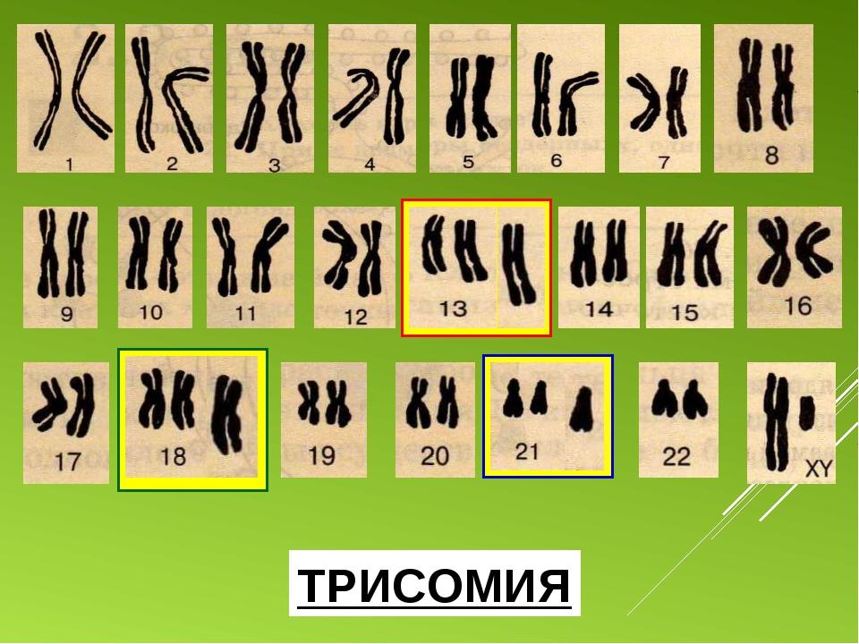 1 2 3 4 5 6 7 8 9 10 11 12 13 14 ТРИСОМИЯ