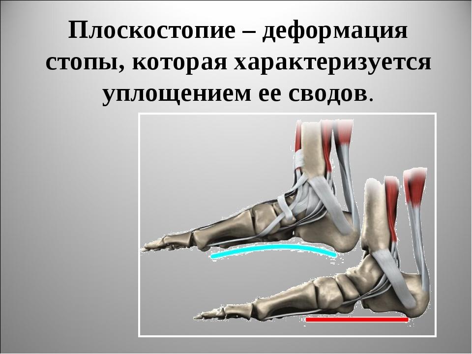 Плоскостопие – деформация стопы, которая характеризуется уплощением ее сводов.