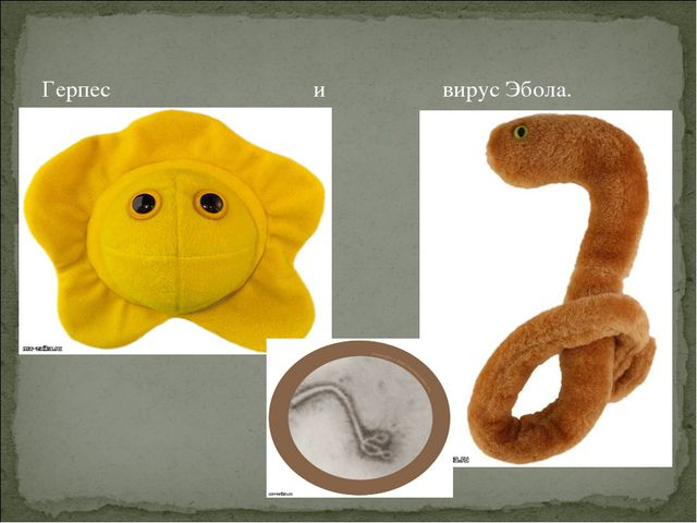 Герпес и вирус Эбола.