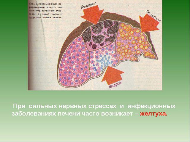 При сильных нервных стрессах и инфекционных заболеваниях печени часто возник...