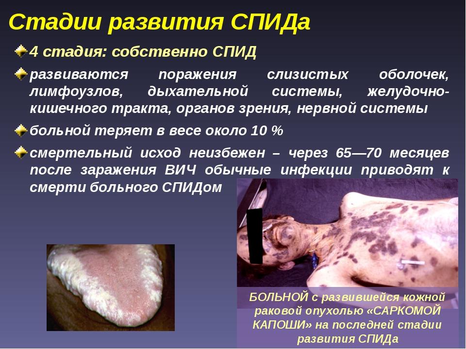 4 стадия: собственно СПИД развиваются поражения слизистых оболочек, лимфоузло...