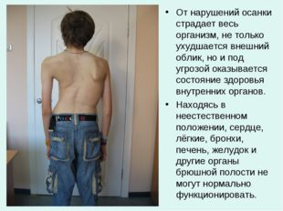 От нарушений осанки страдает весь организм, не только ухудшается внешний обли