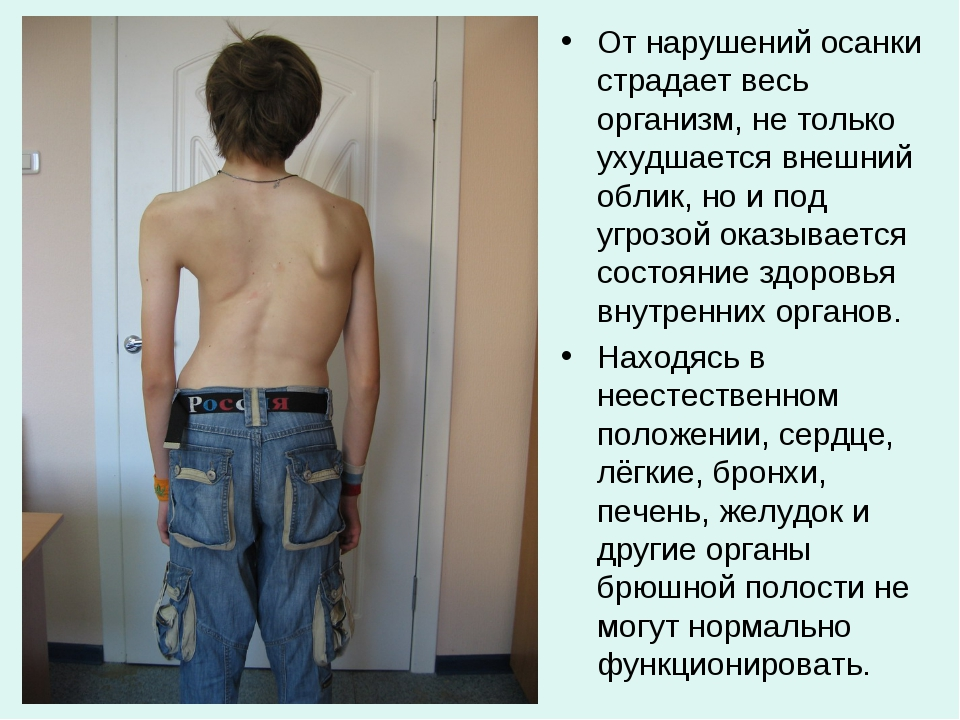 От нарушений осанки страдает весь организм, не только ухудшается внешний обли...