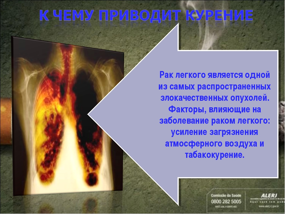 Рак легкого является одной из самых распространенных злокачественных опухолей...